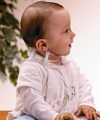 Collarín para tortícolis congenita infantil